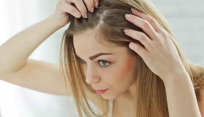 Волосы жирные и выпадают у женщин