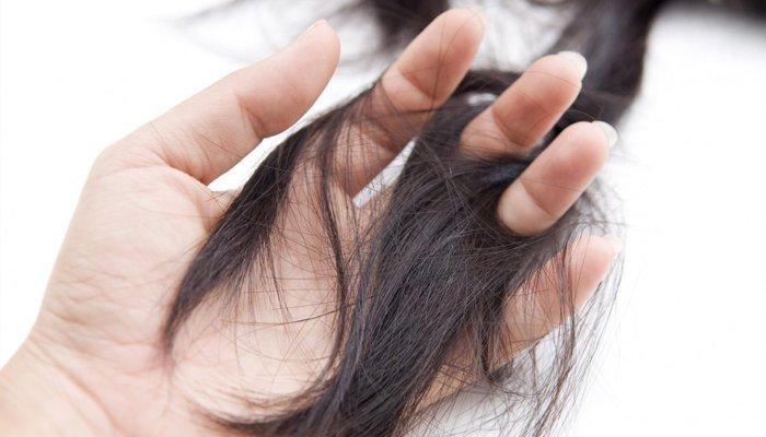 Как бороться с выпадением волос в домашних условиях: отзывы