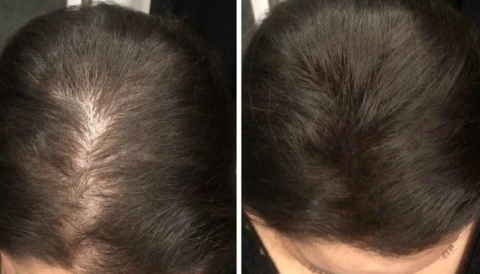 Маски для густоты волос в домашних условиях: отзывы, фото