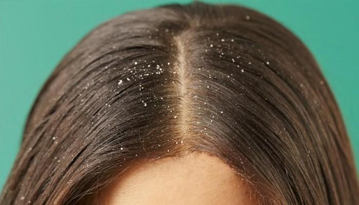 Перхоть и выпадение волос: причины, что делать, чем лечить