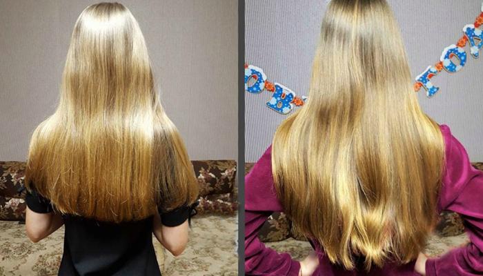 Димексид для роста волос: как применять, фото до и после