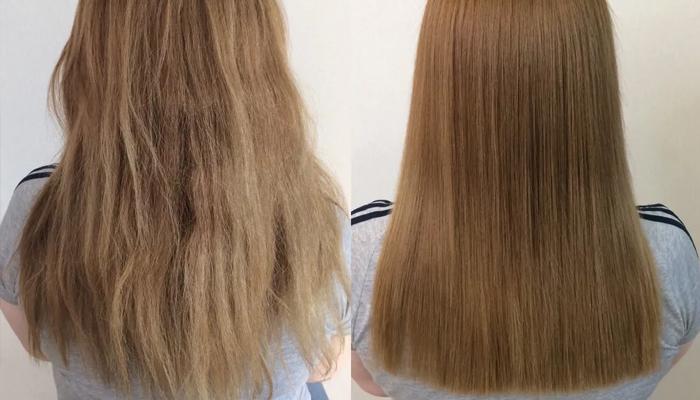 Димексид для волос: применение, рецепты, отзывы с фото до и после